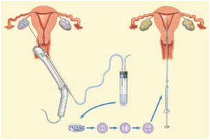 IVF Cycle Treatment India, Cost IVF Cycle Treatment Delhi India,IVF Cycle, IVF Cycle Treatment, IVF Cycle Treatment Mumbai Bangalore Delhi India,  IVF Cycle Treatment Hospitals