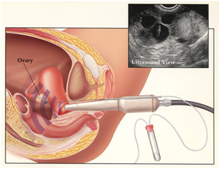 Cost IVF Procedure Mumbai India, IVF Mumbai India,IVF Procedure, IVF Procedure, IVF Procedure Mumbai Bangalore Delhi India,  IVF Procedure Hospitals, IVF Procedure Surgery Center, IVF Procedure Clinic, IVF Procedure Surgeons India, IVF Procedure Surgery Doctors India, IVF Procedure Surgery Superspeciality Hospital India, IVF Procedure Superspeciality Clinic Goa India