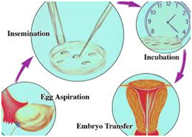 IVF Process India, Cost IVF Process Mumbai India, IVF Process Mumbai, IVF Process, IVF Process, IVF Process Mumbai Bangalore Delhi India,  IVF Process Hospitals, IVF Process Surgery Center, IVF Process Clinic, IVF Process Surgeons India, IVF Process Surgery Doctors India, IVF Process Surgery Superspeciality Hospital India, IVF Process Superspeciality Clinic Goa India